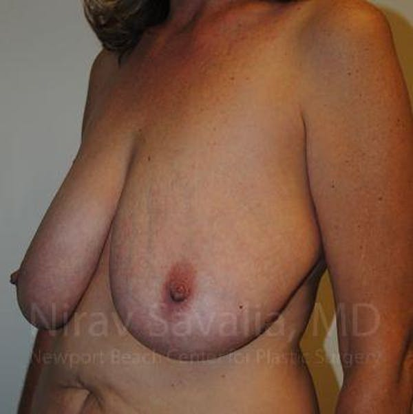 Breast Lift without Implants Gallery - Patient 1655489 - Image 11