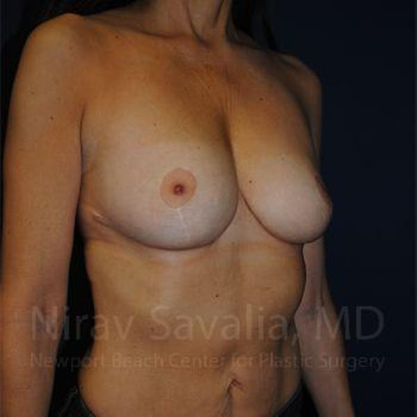 Breast Reduction Gallery - Patient 1655488 - Image 8