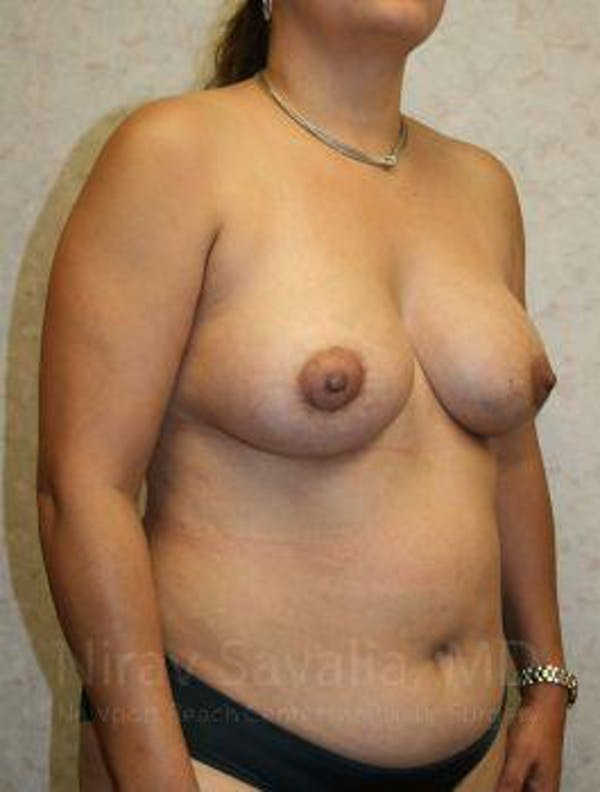 Breast Lift with Implants Gallery - Patient 1655490 - Image 4
