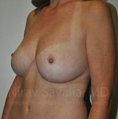 Breast Lift without Implants Gallery - Patient 1655489 - Image 12