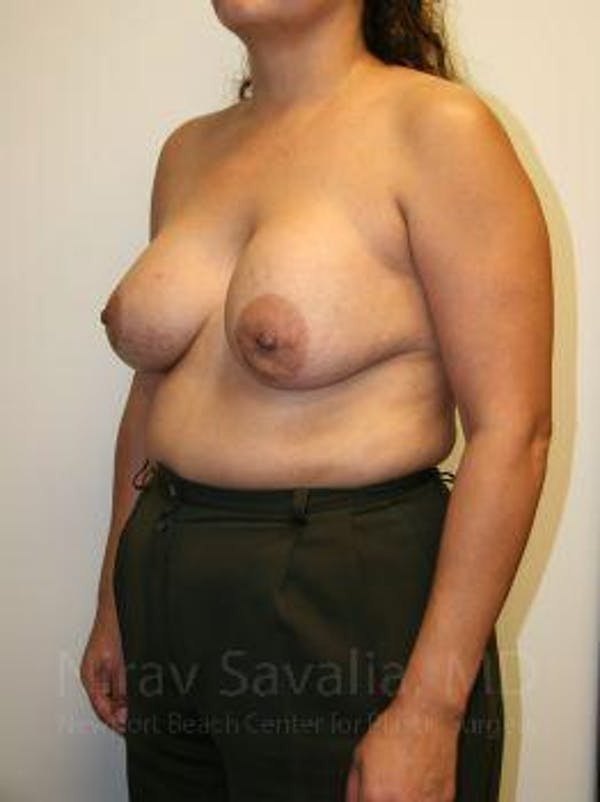 Breast Lift with Implants Gallery - Patient 1655490 - Image 5