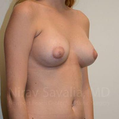 Breast Augmentation Gallery - Patient 1655491 - Image 6