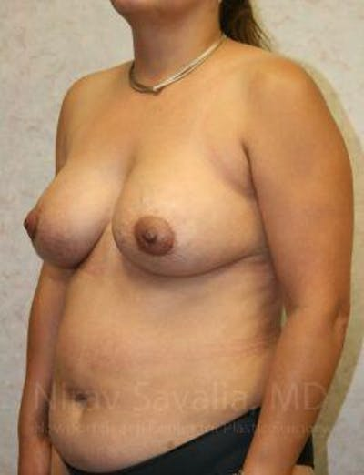 Breast Lift with Implants Gallery - Patient 1655490 - Image 6
