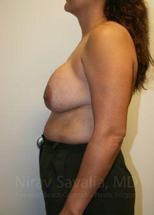 Breast Lift with Implants Gallery - Patient 1655490 - Image 7