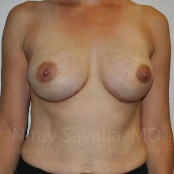Mastectomy Reconstruction Gallery - Patient 1655492 - Image 2