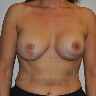Breast Implant Revision Gallery - Patient 1655494 - Image 1
