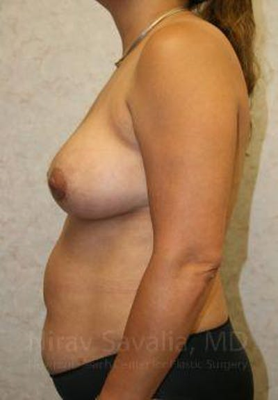 Breast Lift with Implants Gallery - Patient 1655490 - Image 8
