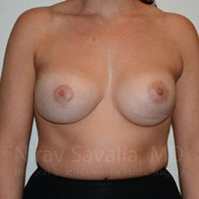 Breast Implant Revision Gallery - Patient 1655494 - Image 2