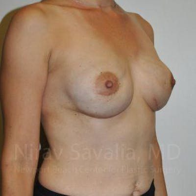 Mastectomy Reconstruction Gallery - Patient 1655492 - Image 4