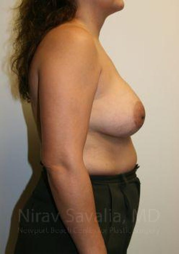Breast Lift with Implants Gallery - Patient 1655490 - Image 9