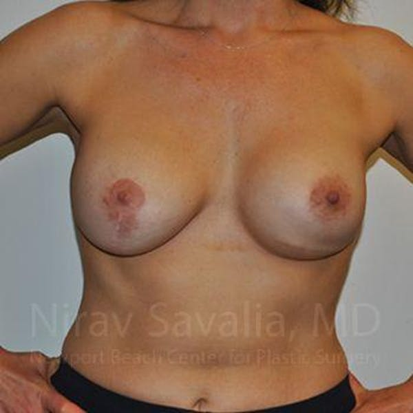 Breast Implant Revision Gallery - Patient 1655494 - Image 3