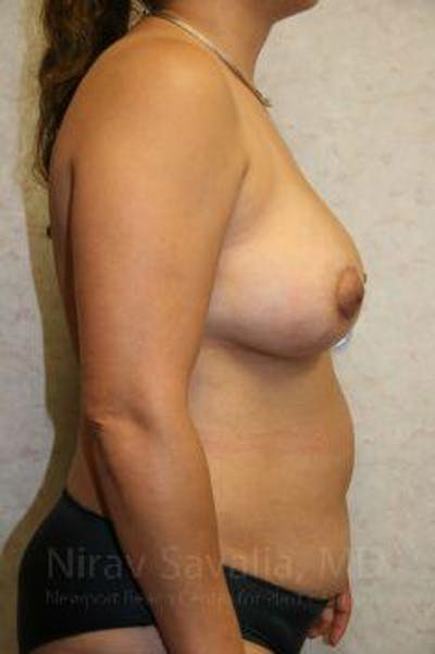 Breast Lift with Implants Gallery - Patient 1655490 - Image 10
