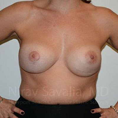 Breast Implant Revision Gallery - Patient 1655494 - Image 4