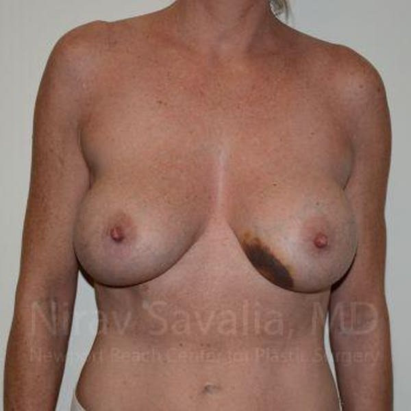 Breast Lift without Implants Gallery - Patient 1655495 - Image 1