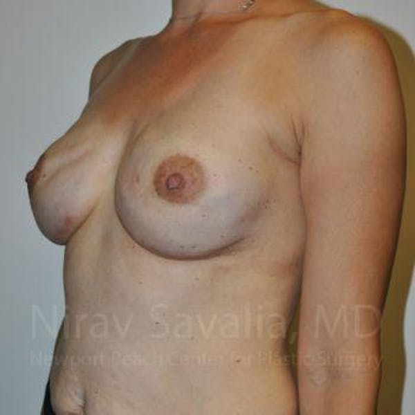 Mastectomy Reconstruction Gallery - Patient 1655492 - Image 6