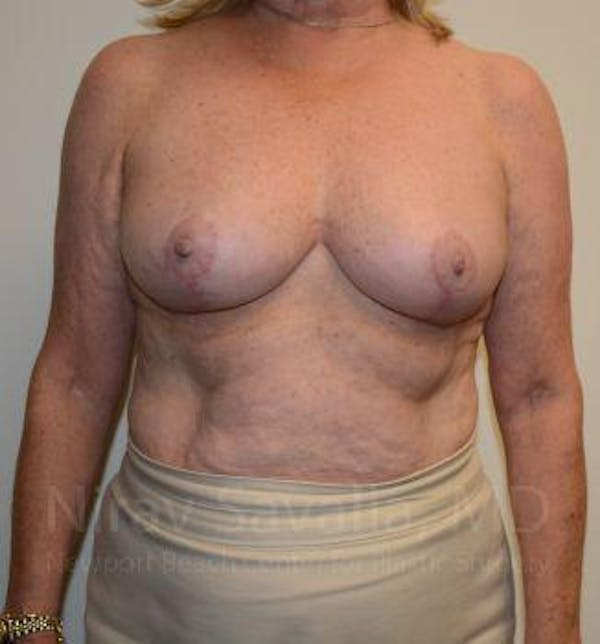Breast Reduction Gallery - Patient 1655496 - Image 2