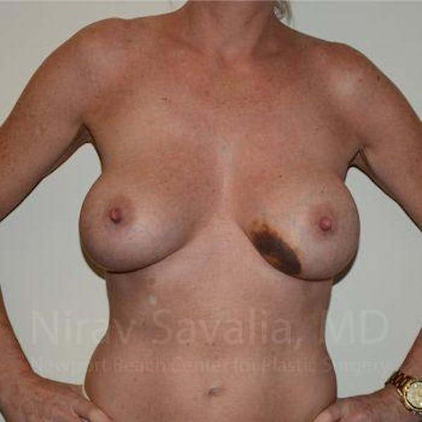 Breast Lift without Implants Gallery - Patient 1655495 - Image 3