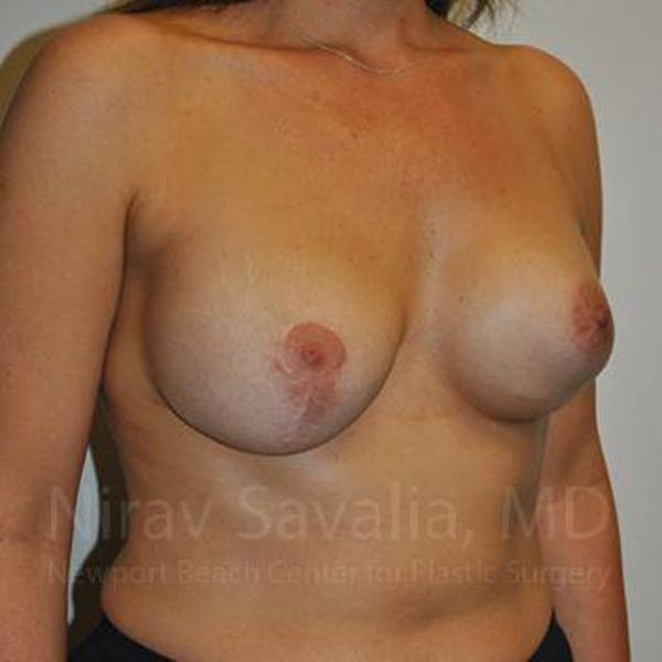 Breast Implant Revision Gallery - Patient 1655494 - Image 7