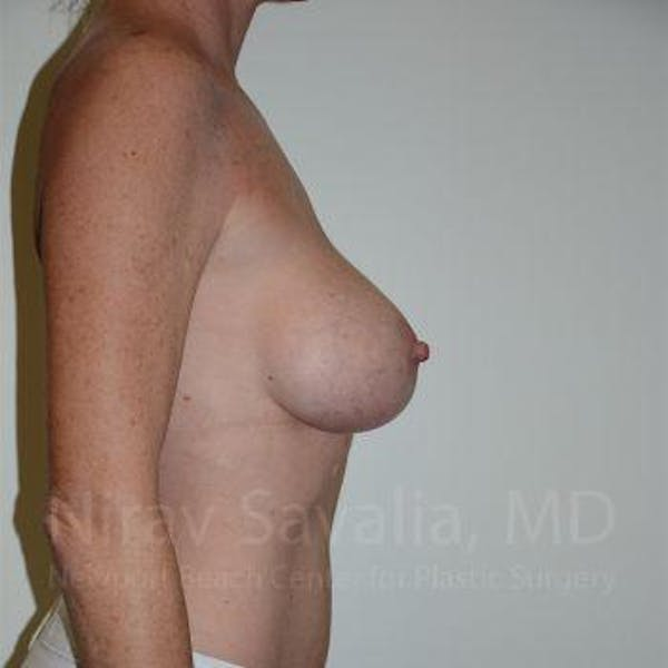 Breast Lift without Implants Gallery - Patient 1655495 - Image 7