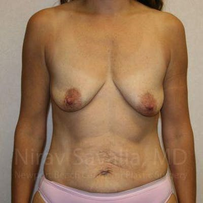 Breast Lift with Implants Gallery - Patient 1655497 - Image 1