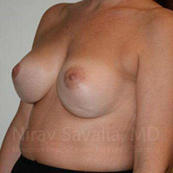 Breast Implant Revision Gallery - Patient 1655494 - Image 10