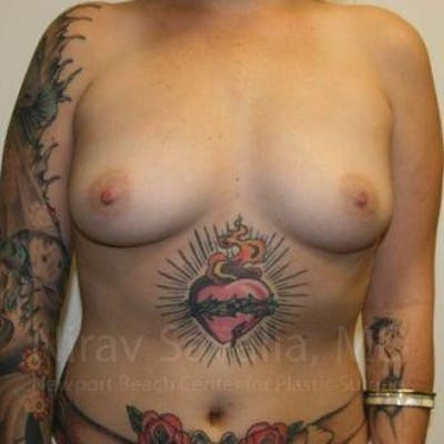 Breast Augmentation Gallery - Patient 1655500 - Image 1
