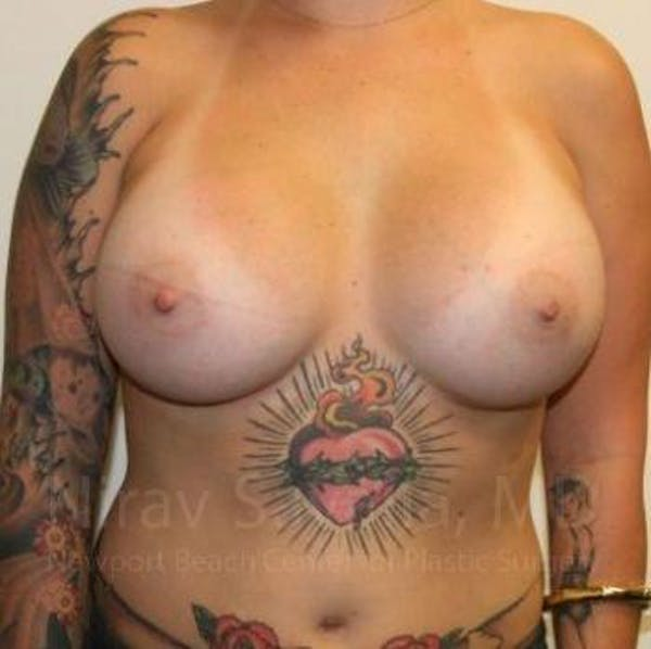 Breast Augmentation Gallery - Patient 1655500 - Image 2