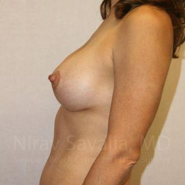 Breast Lift with Implants Gallery - Patient 1655497 - Image 4