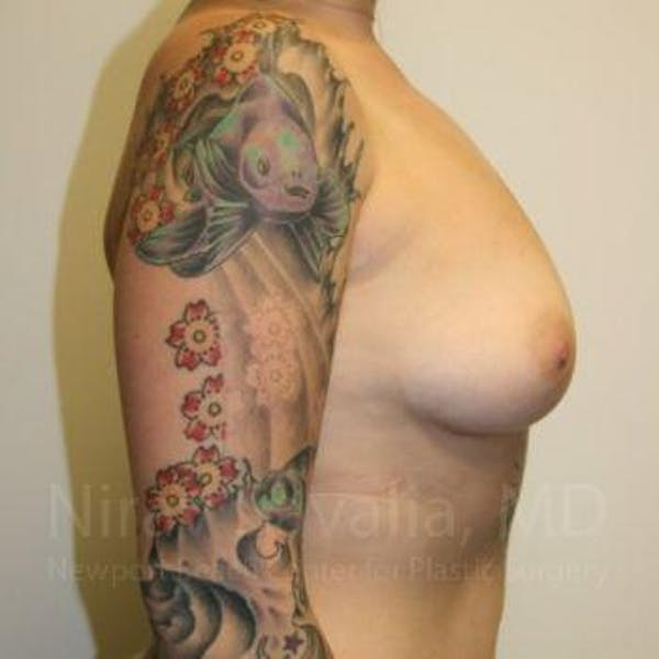 Breast Augmentation Gallery - Patient 1655500 - Image 3