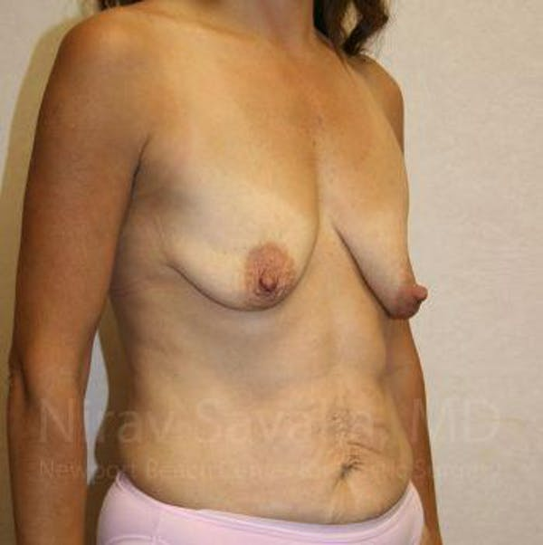 Breast Lift with Implants Gallery - Patient 1655497 - Image 5
