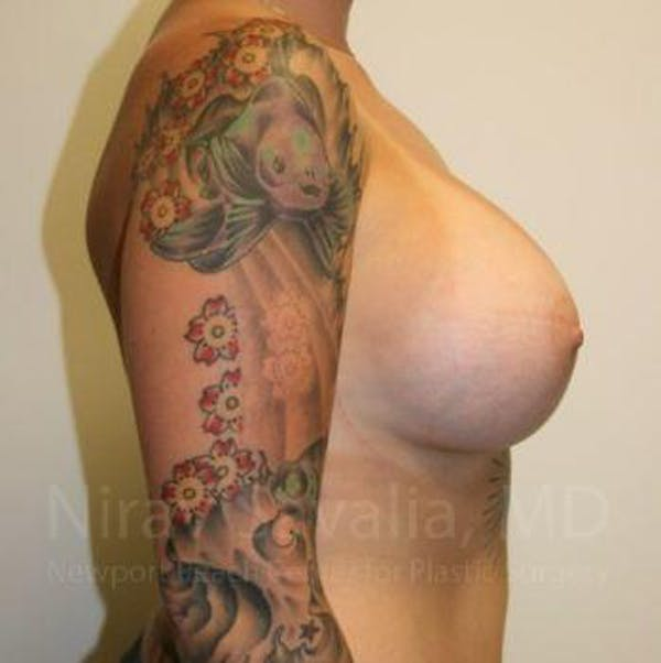 Breast Augmentation Gallery - Patient 1655500 - Image 4