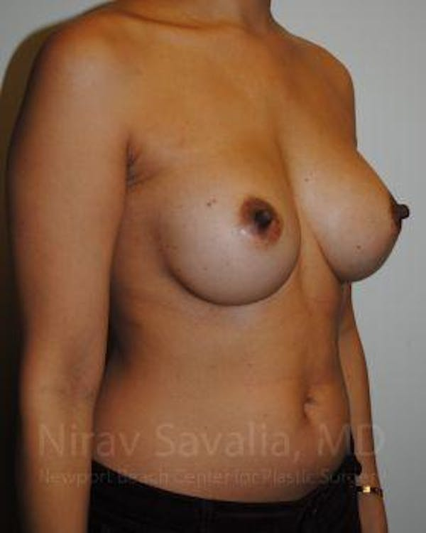 Mastectomy Reconstruction Gallery - Patient 1655498 - Image 3