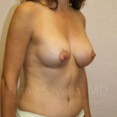 Breast Lift with Implants Gallery - Patient 1655497 - Image 6