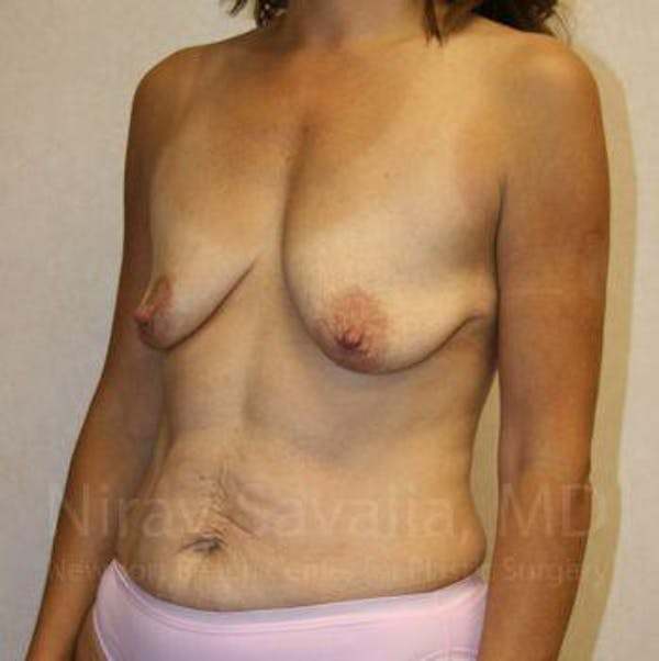 Breast Lift with Implants Gallery - Patient 1655497 - Image 7