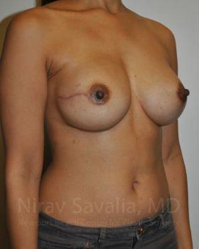 Mastectomy Reconstruction Gallery - Patient 1655498 - Image 4