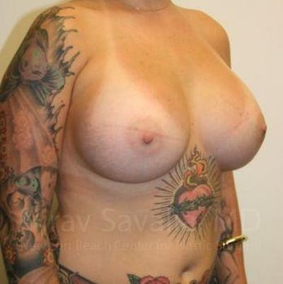 Breast Augmentation Gallery - Patient 1655500 - Image 6