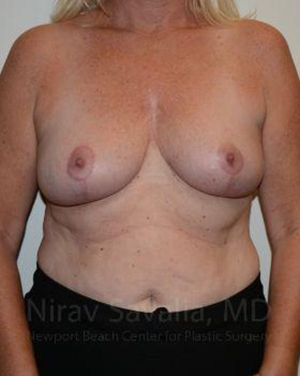 Oncoplastic Reconstruction Gallery - Patient 1655499 - Image 2