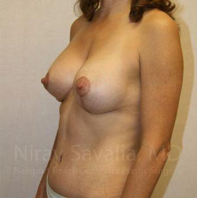 Breast Lift with Implants Gallery - Patient 1655497 - Image 8