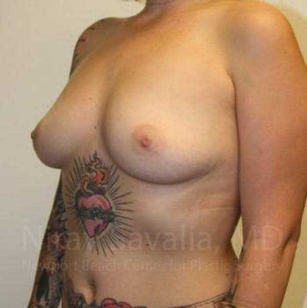 Breast Augmentation Gallery - Patient 1655500 - Image 7