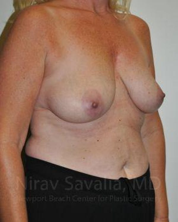Oncoplastic Reconstruction Gallery - Patient 1655499 - Image 3