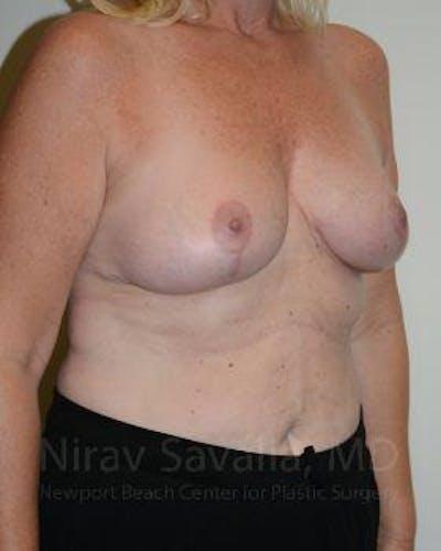 Oncoplastic Reconstruction Gallery - Patient 1655499 - Image 4
