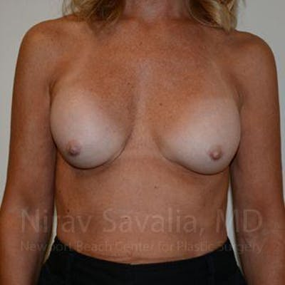 Breast Implant Revision Gallery - Patient 1655503 - Image 1
