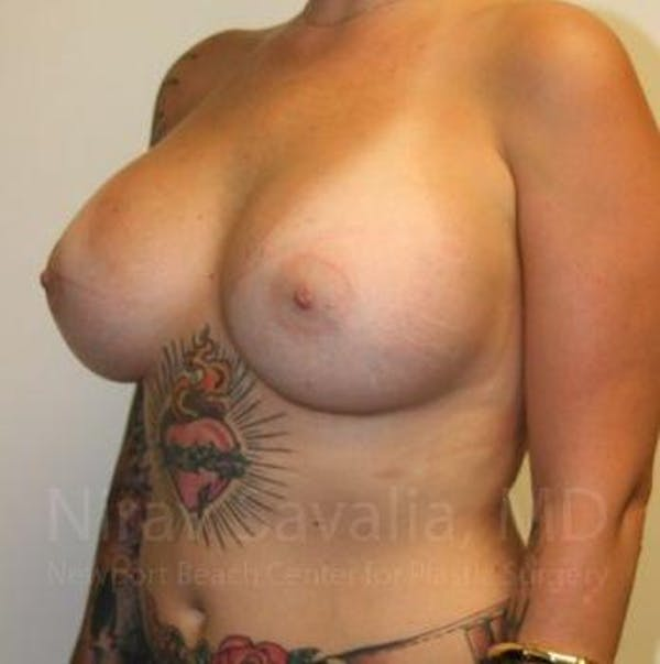 Breast Augmentation Gallery - Patient 1655500 - Image 8