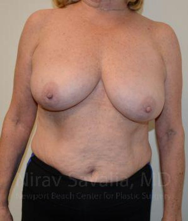 Breast Lift without Implants Gallery - Patient 1655501 - Image 1