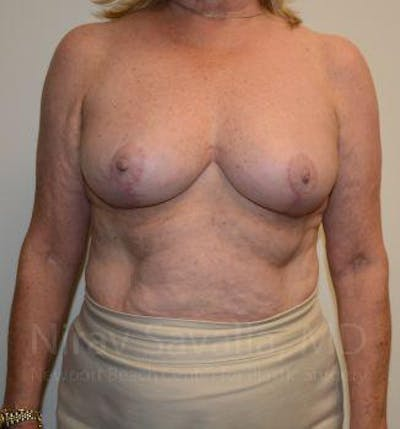 Breast Lift without Implants Gallery - Patient 1655501 - Image 2