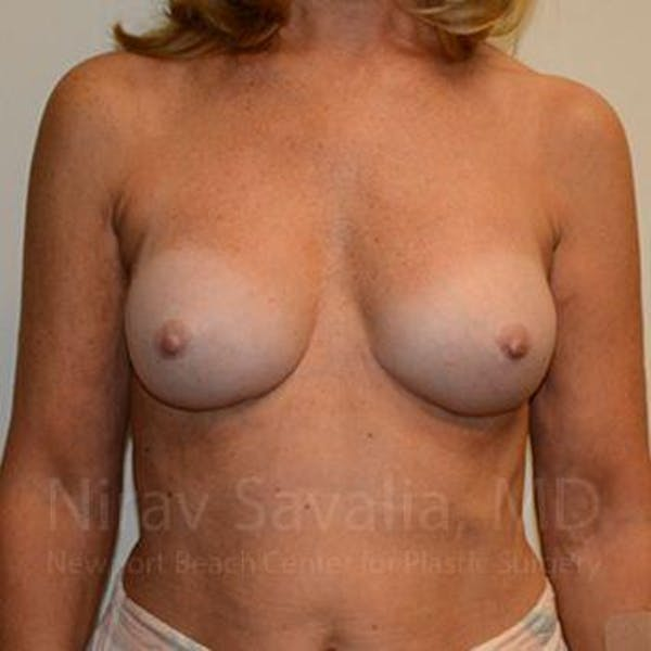 Breast Implant Revision Gallery - Patient 1655503 - Image 2