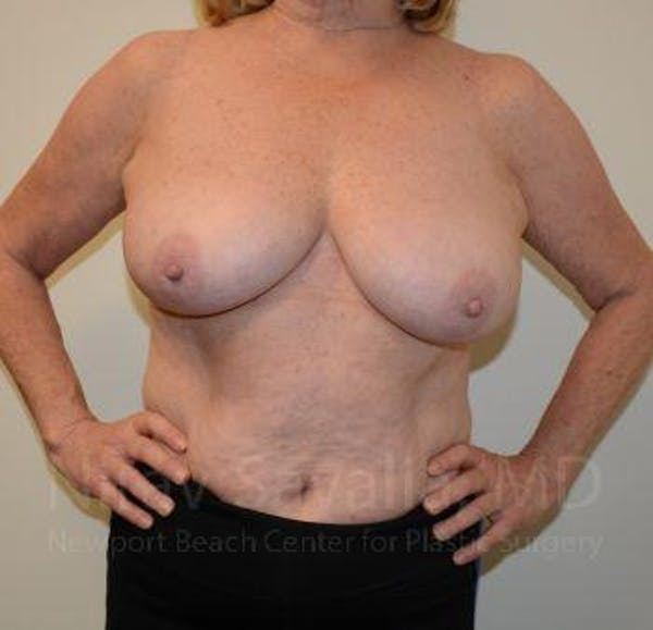 Breast Lift without Implants Gallery - Patient 1655501 - Image 3