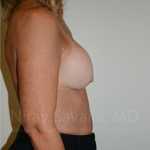 Breast Implant Revision Gallery - Patient 1655503 - Image 3