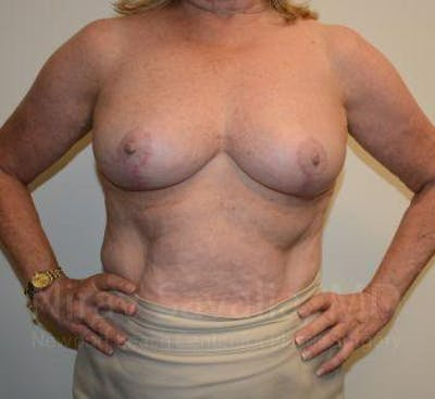 Breast Lift without Implants Gallery - Patient 1655501 - Image 4