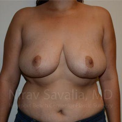 Breast Reduction Gallery - Patient 1655504 - Image 2